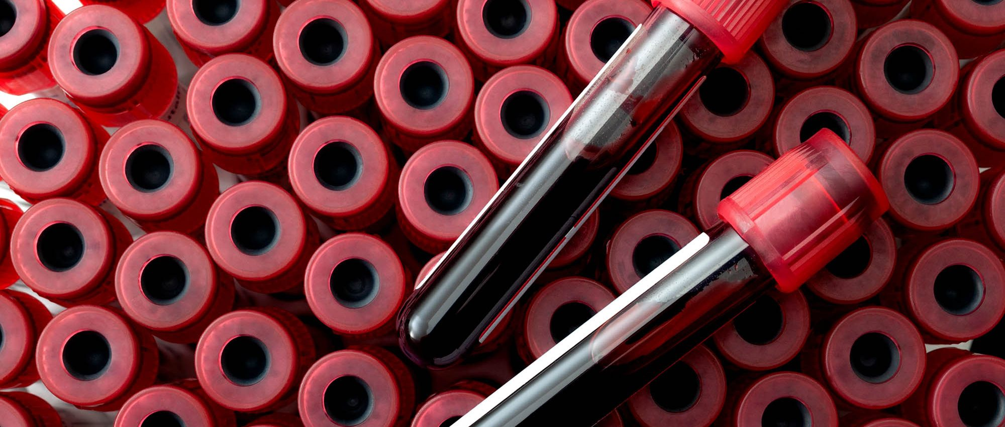 photo of vials of blood Phlebotomy